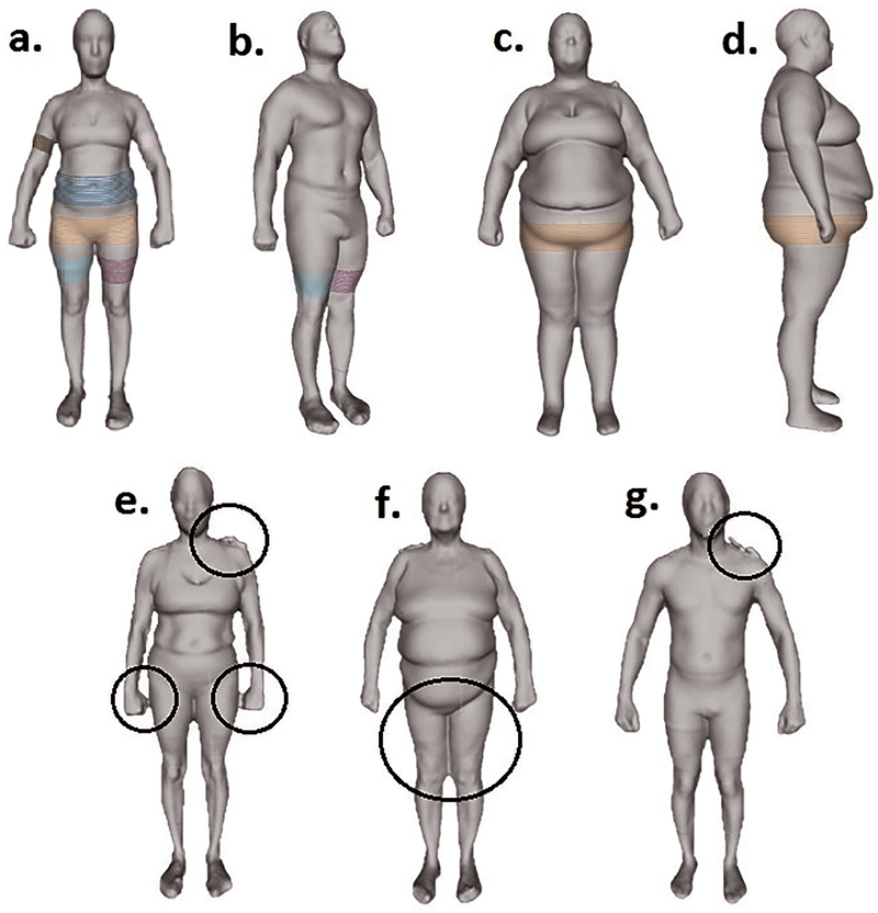 Optical imaging technology for body size and shape analysis: evaluation of a system designed for personal use