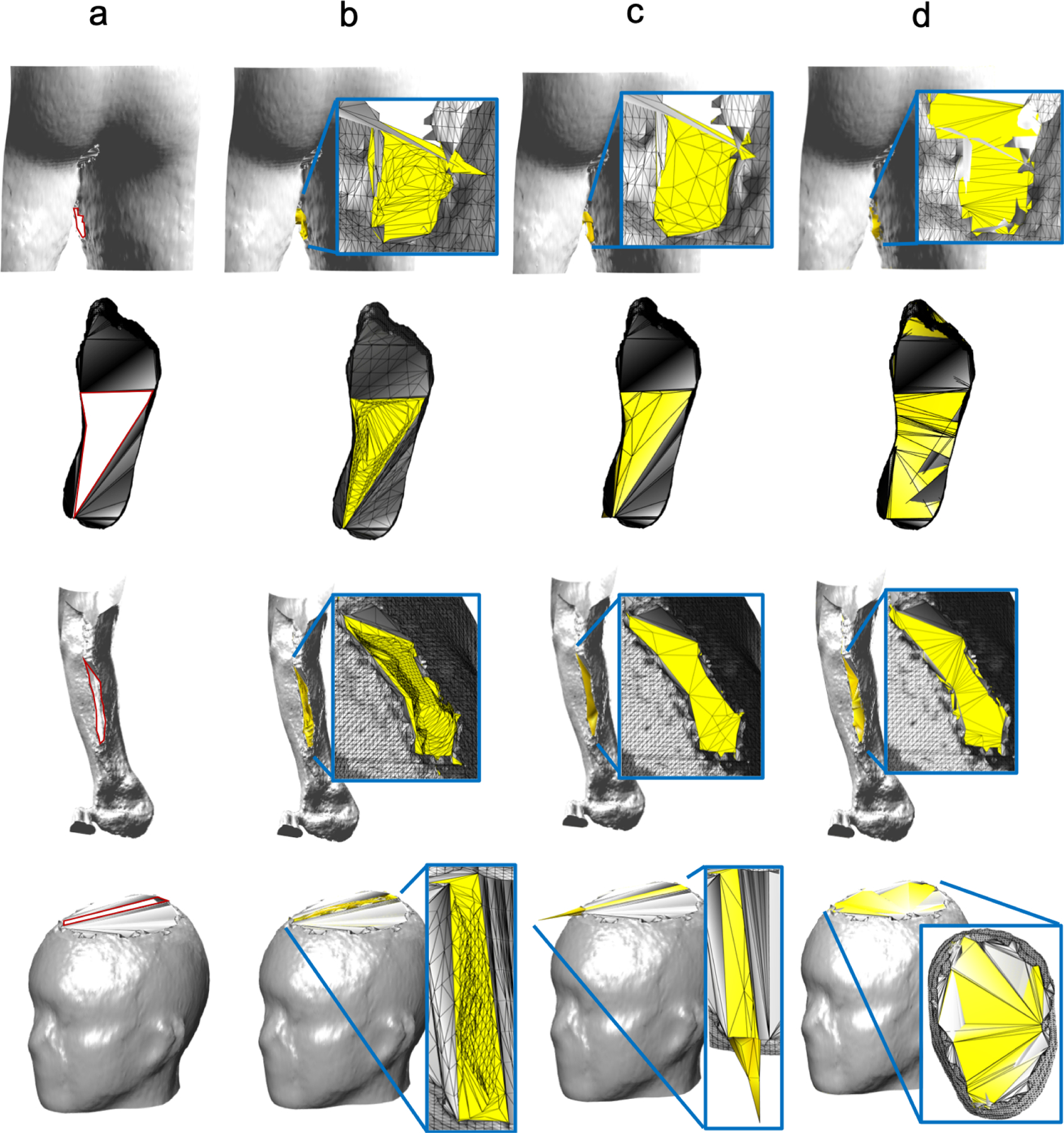 Hole Filling in 3D Scans for Digital Anthropometric Applications